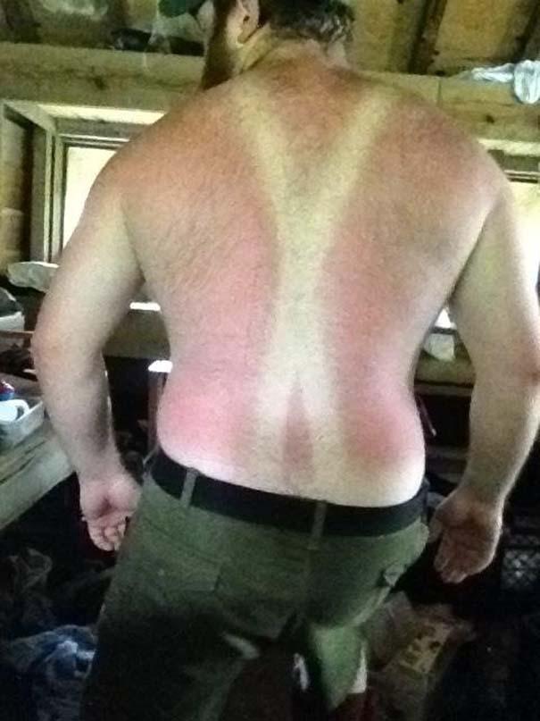 25+1 απίστευτα θύματα του καλοκαιρινού ήλιου (19)