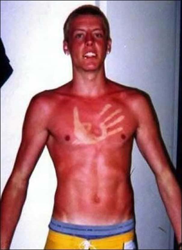 25+1 απίστευτα θύματα του καλοκαιρινού ήλιου (26)