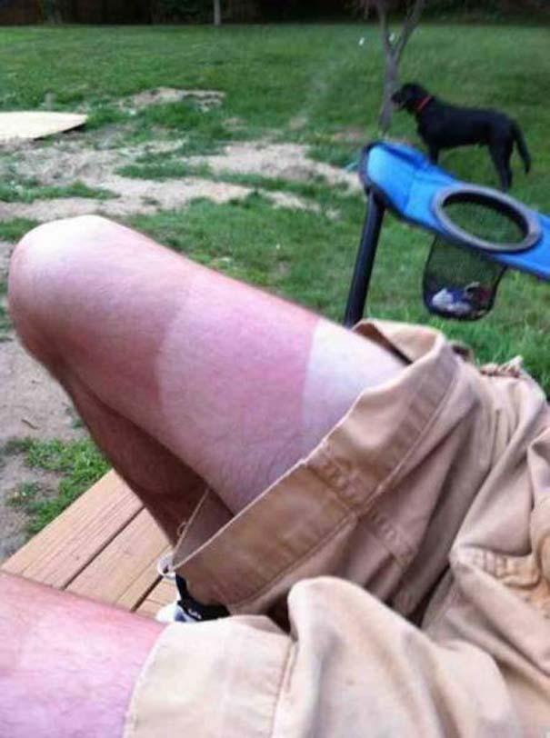 24 άνθρωποι που... μετάνιωσαν πικρά την ηλιοθεραπεία που έκαναν (4)