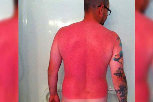 24 άνθρωποι που... μετάνιωσαν πικρά την ηλιοθεραπεία που έκαναν (5)