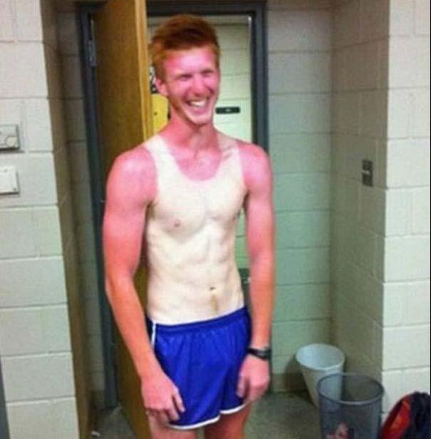24 άνθρωποι που... μετάνιωσαν πικρά την ηλιοθεραπεία που έκαναν (9)