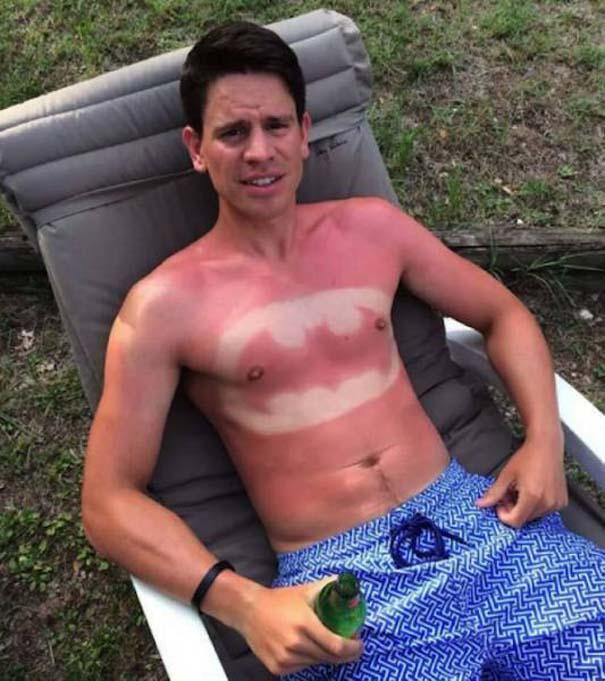24 άνθρωποι που... μετάνιωσαν πικρά την ηλιοθεραπεία που έκαναν (18)