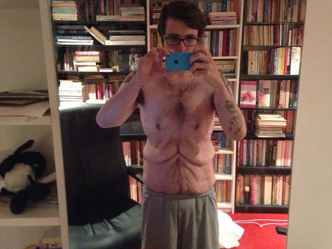 Το αθέατο μειονέκτημα του να χάνεις 120 κιλά μέσα σε 3 χρόνια (3)