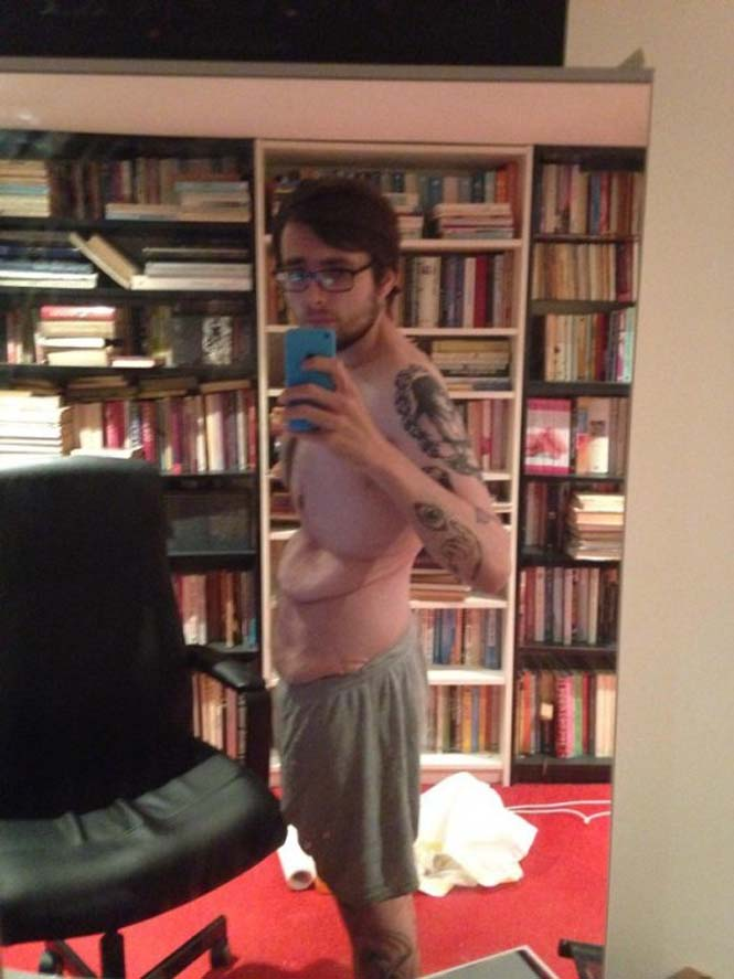 Το αθέατο μειονέκτημα του να χάνεις 120 κιλά μέσα σε 3 χρόνια (5)