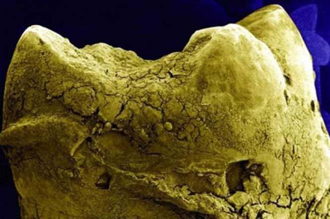 Το ανθρώπινο σώμα στο μικροσκόπιο (4)