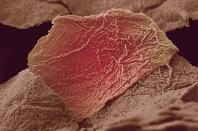 Το ανθρώπινο σώμα στο μικροσκόπιο (6)