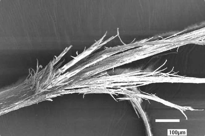 Το ανθρώπινο σώμα στο μικροσκόπιο (8)