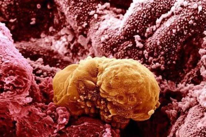 Το ανθρώπινο σώμα στο μικροσκόπιο (17)