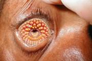 10 ασθένειες που μπορούν να σε σκοτώσουν σε μια μέρα
