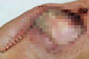 Πως το μακιγιάζ ειδικών εφέ κάνει τις ψεύτικες πληγές να μοιάζουν αληθινές