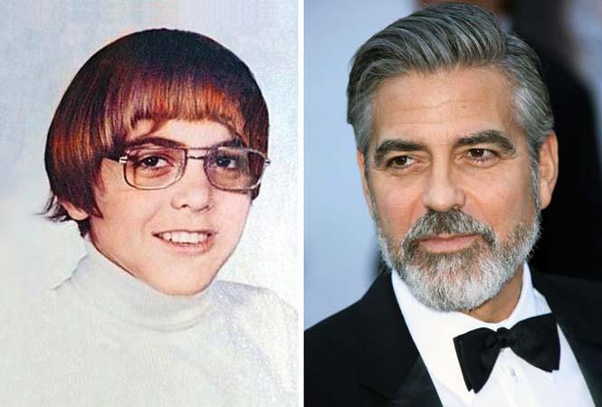 Διάσημοι που «άνθισαν» μετά την εφηβεία (1)