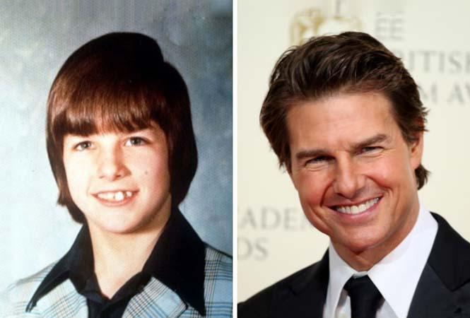 Διάσημοι που «άνθισαν» μετά την εφηβεία (10)