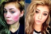 Πως το μακιγιάζ μπορεί να «εξαφανίσει» τα δερματικά προβλήματα των γυναικών (1)