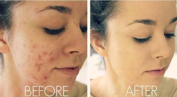 Πως το μακιγιάζ μπορεί να «εξαφανίσει» τα δερματικά προβλήματα των γυναικών (4)