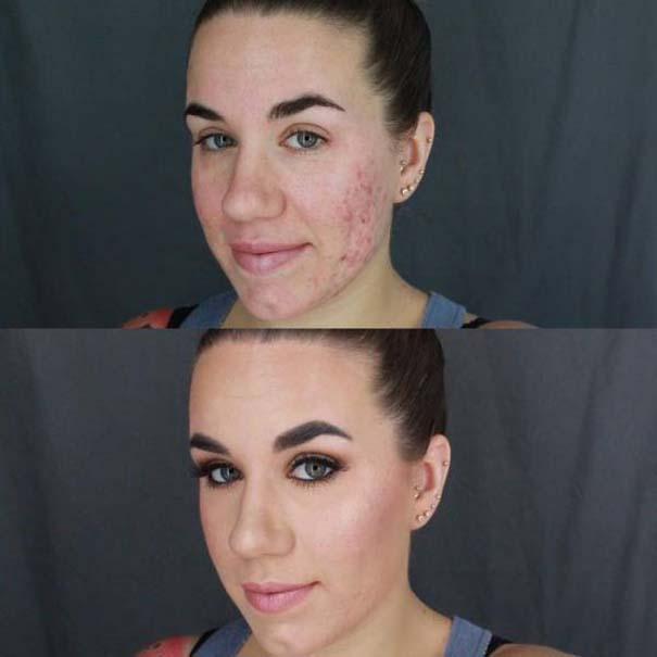 Πως το μακιγιάζ μπορεί να «εξαφανίσει» τα δερματικά προβλήματα των γυναικών (7)