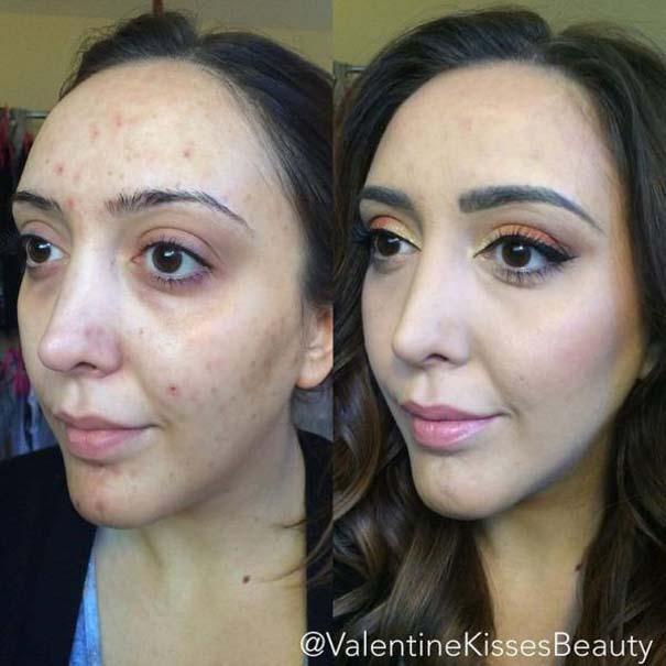 Πως το μακιγιάζ μπορεί να «εξαφανίσει» τα δερματικά προβλήματα των γυναικών (9)