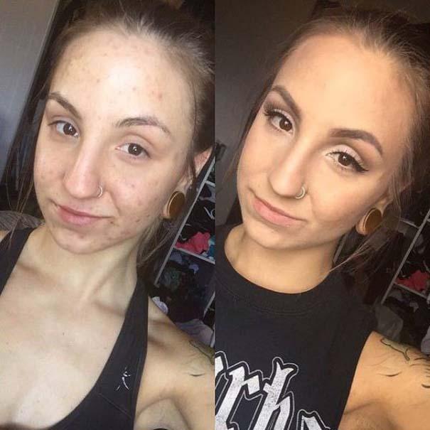 Πως το μακιγιάζ μπορεί να «εξαφανίσει» τα δερματικά προβλήματα των γυναικών (12)