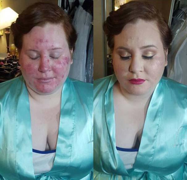 Πως το μακιγιάζ μπορεί να «εξαφανίσει» τα δερματικά προβλήματα των γυναικών (13)