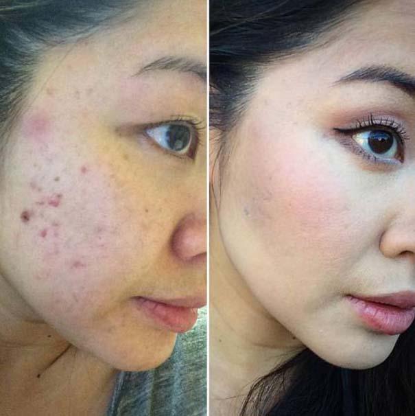 Πως το μακιγιάζ μπορεί να «εξαφανίσει» τα δερματικά προβλήματα των γυναικών (14)