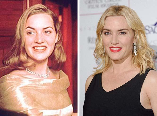 Πόσο άλλαξαν διάσημοι ηθοποιοί από την πρώτη τους εμφάνιση (8)