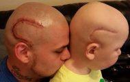 Πατέρας έκανε τατουάζ ίδιο με την ουλή του καρκινοπαθή γιου του για συμπαράσταση (1)