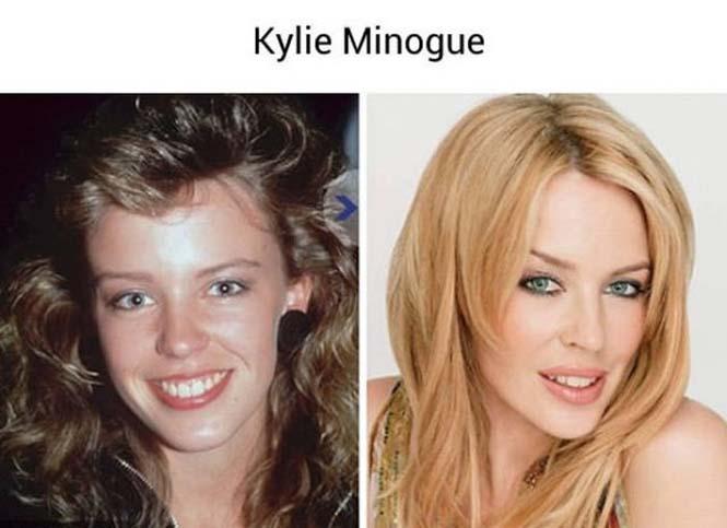 Τότε και τώρα: Όταν οι διάσημοι ήταν απλοί καθημερινοί άνθρωποι (21)