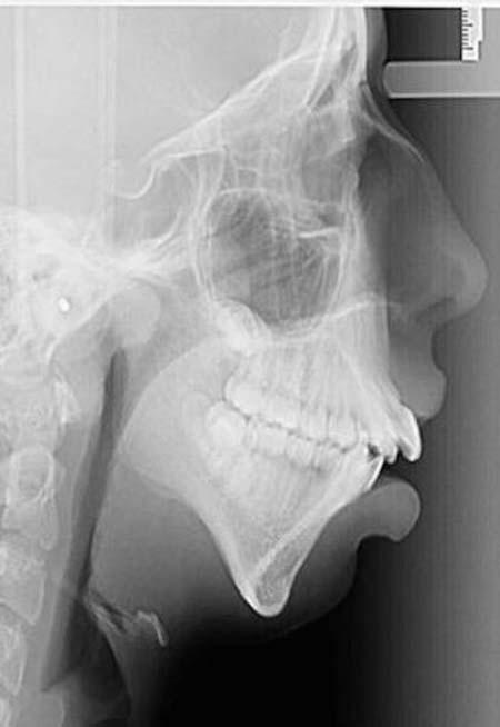 Απίστευτη μεταμόρφωση κοπέλας μετά από αισθητική επέμβαση στο σαγόνι (4)