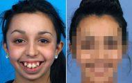 Απίστευτη μεταμόρφωση κοπέλας μετά από αισθητική επέμβαση στο σαγόνι (9)