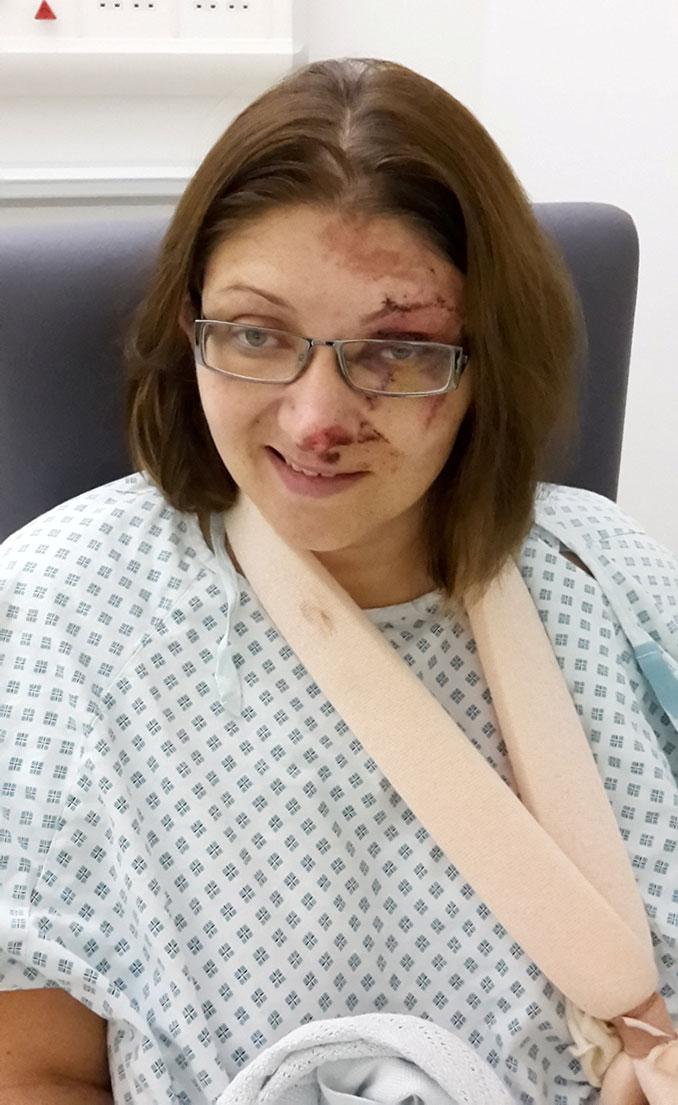Οδηγός επέζησε από θαύμα όταν το αυτοκίνητο της συνεθλίβη ανάμεσα σε 2 νταλίκες (6)