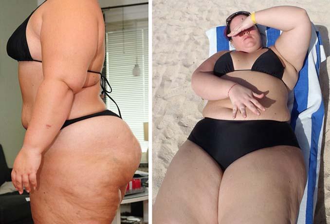 37χρονη έχασε 76 κιλά (3)