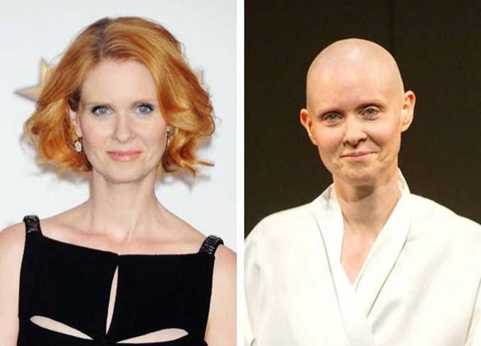 Διάσημες ηθοποιοί που άλλαξαν την εμφάνιση τους για έναν ρόλο (10)