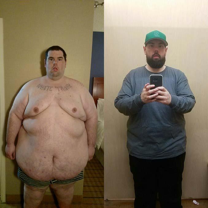 Άνδρας έχασε 114 κιλά (2)