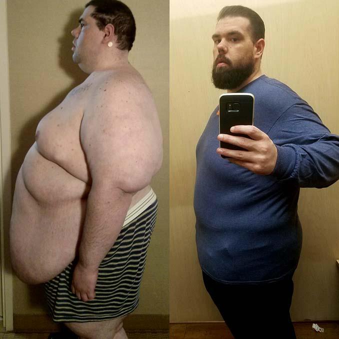Άνδρας έχασε 114 κιλά (3)