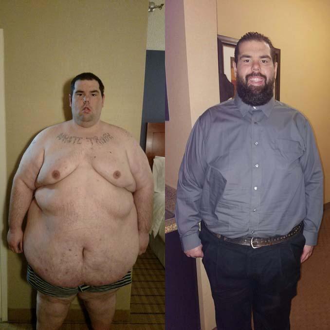 Άνδρας έχασε 114 κιλά (4)