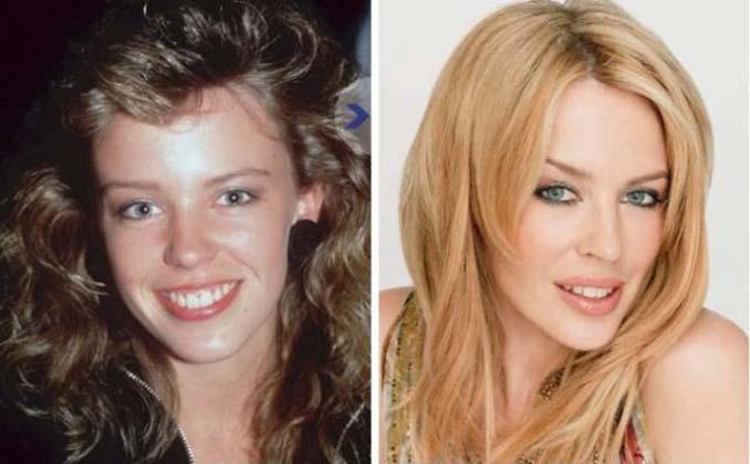 Διάσημοι τραγουδιστές και πως ήταν πριν γίνουν γνωστοί (14)