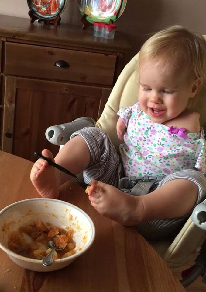 Κοριτσάκι που γεννήθηκε χωρίς χέρια μαθαίνει να τρώει με τα πόδια (2)