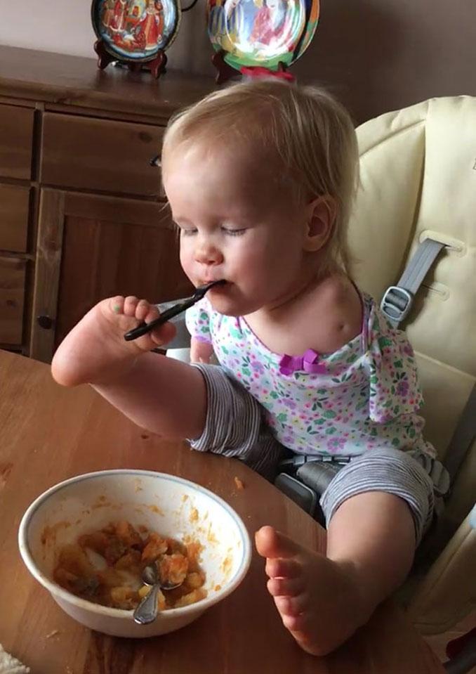 Κοριτσάκι που γεννήθηκε χωρίς χέρια μαθαίνει να τρώει με τα πόδια (4)