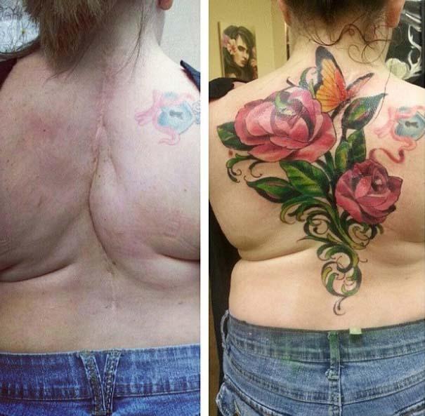 Τατουάζ που χρησιμοποιήθηκαν για να καλύψουν ουλές (11)