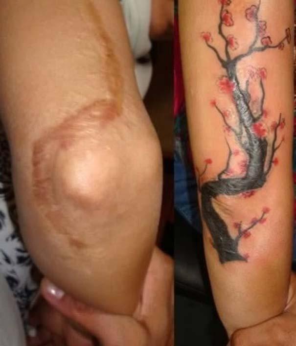 Τατουάζ που χρησιμοποιήθηκαν για να καλύψουν ουλές (15)