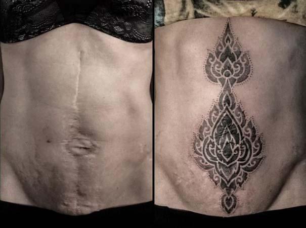 Τατουάζ που χρησιμοποιήθηκαν για να καλύψουν ουλές (20)