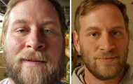 Φωτογραφίες πριν και μετά δείχνουν τι συμβαίνει όταν κόψεις το ποτό (1)