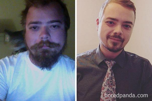 Φωτογραφίες πριν και μετά δείχνουν τι συμβαίνει όταν κόψεις το ποτό (5)
