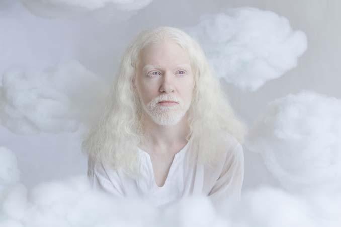Φωτογράφος απαθανατίζει την πορσελάνινη ομορφιά των ανθρώπων με αλμπινισμό (5)