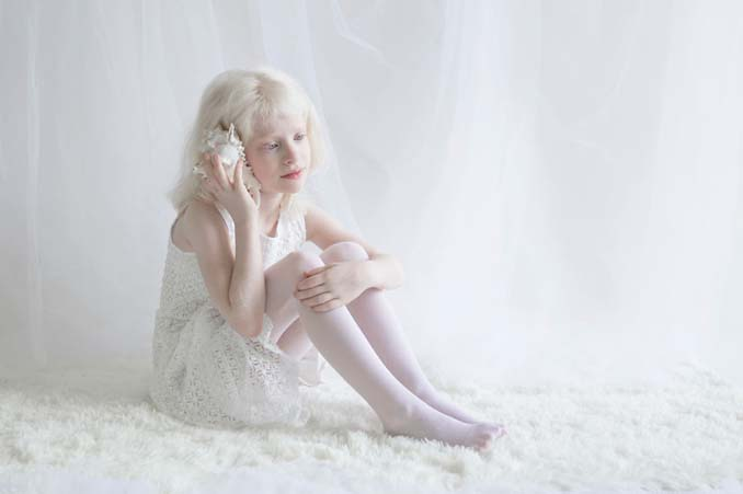 Φωτογράφος απαθανατίζει την πορσελάνινη ομορφιά των ανθρώπων με αλμπινισμό (11)