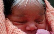 Κοριτσάκι γεννήθηκε με μια άσπρη τούφα μαλλιών στο ίδιο σημείο που την έχει και η μητέρα της (1)