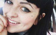 Μια παράξενη νέα τάση: Τατουάζ φακίδες στο πρόσωπο