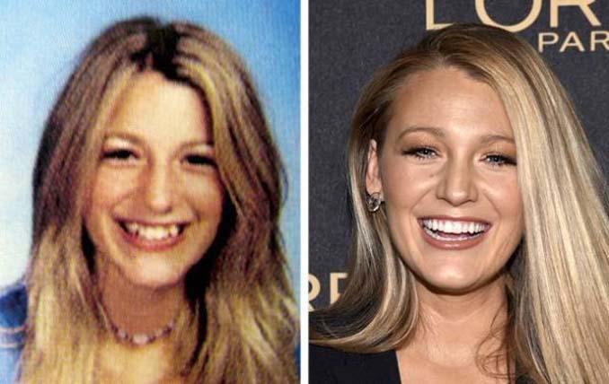 Δείτε πόσο έχουν αλλάξει αυτοί οι διάσημοι σε σχέση με τα σχολικά τους χρόνια (8)