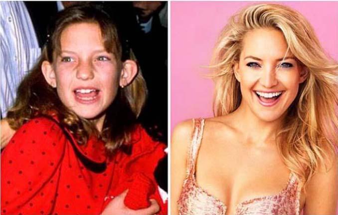Δείτε πόσο έχουν αλλάξει αυτοί οι διάσημοι σε σχέση με τα σχολικά τους χρόνια (20)