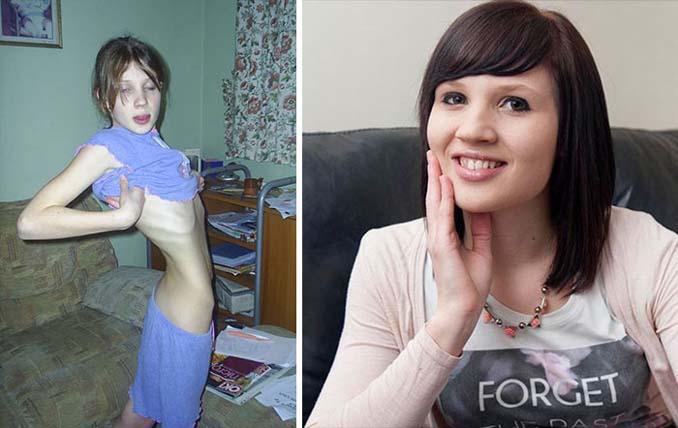 Πριν και Μετά - Εκπληκτικές φωτογραφίες ανθρώπων που νίκησαν την ανορεξία (3)