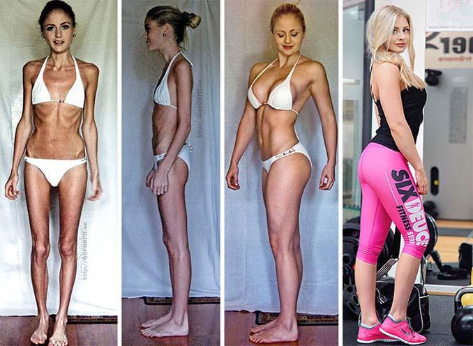 Πριν και Μετά - Εκπληκτικές φωτογραφίες ανθρώπων που νίκησαν την ανορεξία (4)